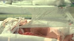 Ouders laten baby met zeldzame 'vissenhuidziekte' achter in ziekenhuis