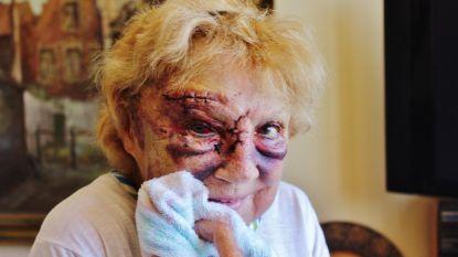 Verdachte opgepakt die Jacqueline (78) met baseballknuppel in elkaar sloeg om haar handtas te stelen