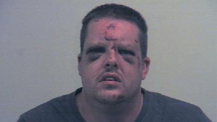 Johnathon Holmes werd zwaar toegetakeld door het slachtoffer.