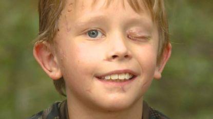 """Amerikaans jongetje (8) overleeft aanval van poema: """"Ik probeerde met een stok in zijn oog te steken"""""""
