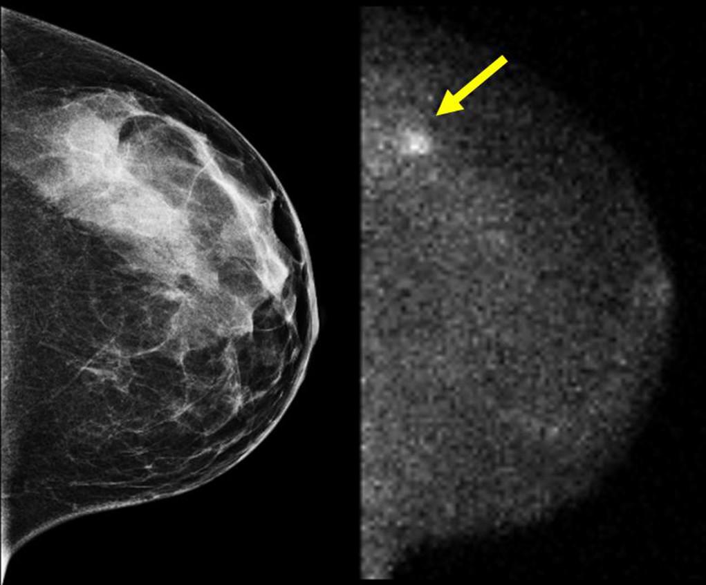 Wel of geen screening voor borstkanker kan afhangen van het tijdstip van doktersbezoek.