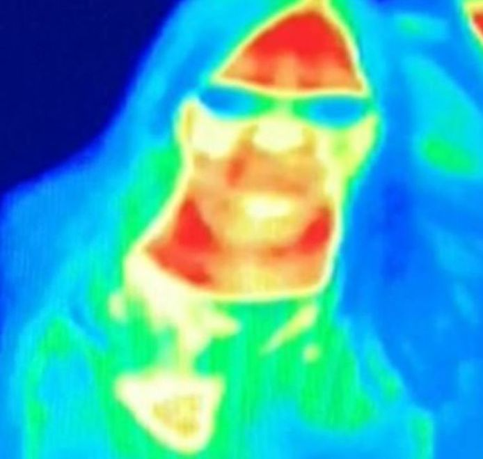 Bal Gill a remarqué une tache jaune au niveau de son sein gauche lors de sa visite au musée Camera Obscura