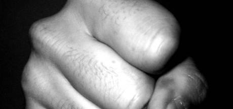 Tbs met dwangverpleging voor 22-jarige Arnhemmer met kort lontje