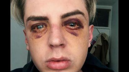 VIDEO: Brits koppel vertelt hoe ze in elkaar werden geslagen omdat ze homo zijn
