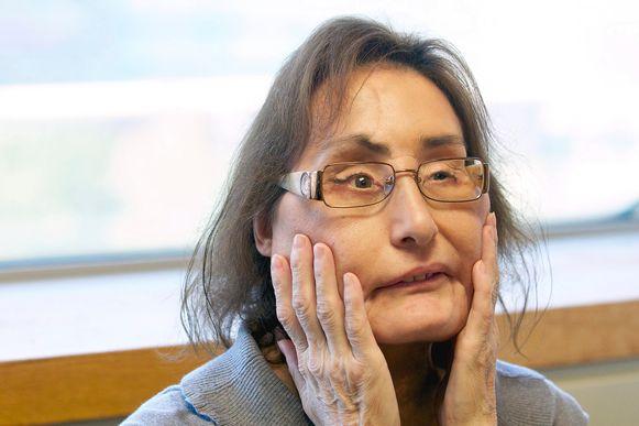 Connie Culp in september 2010, bijna twee jaar na haar gedeeltelijke gezichtstransplantatie.
