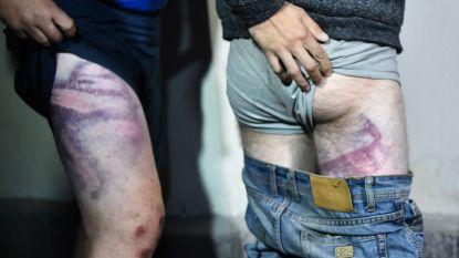 Foto's liegen niet: opgepakte burgers in Wit-Rusland werden afgeranseld en gemarteld