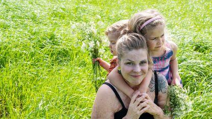 """Deze 3 vrouwen tonen trots hun imperfecties: """"Mijn brandwonden lopen van mijn oor tot aan mijn grote teen. Vooral in de zomer weten mensen soms niet waar kijken"""""""