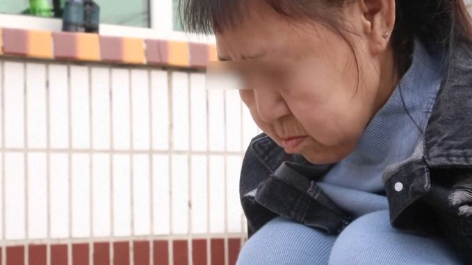 Bizarre huidaandoening: 15-jarig meisje lijkt 60 jaar oud