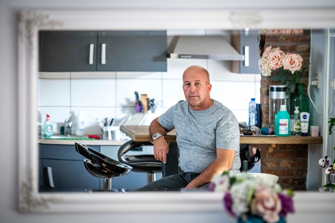 Joāo Vieira is door een arbeidsongeval zijn duim kwijt.