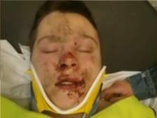 Opnieuw schoolgeweld: 15-jarige tweeling zwaar toegetakeld