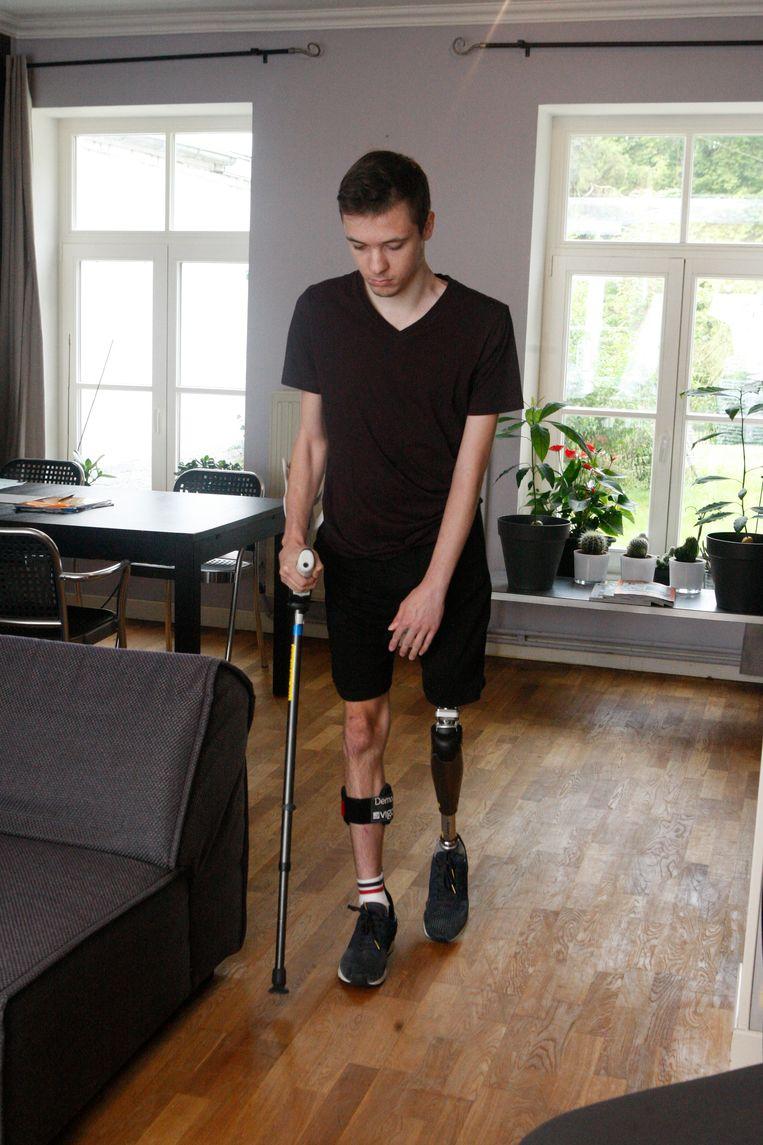 Eenmaal binnen behelpt Tom zich met een beenprothese en een kruk.