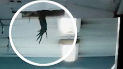 Bizarre 'hand' zorgt voor paniek in ziekenhuis
