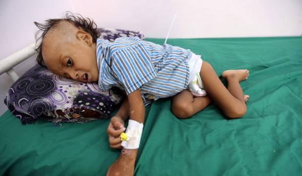 Bijna 100.000 kinderen Jemen stierven een hongerdood