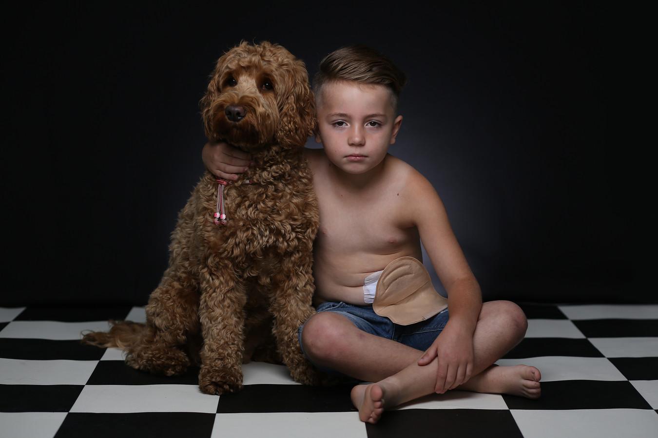 Narik Babanian (7) heeft sinds zijn derde jaar een stoma en schaamt zich er niet langer voor.