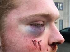 Waarom heeft politie verdachte van mishandeling op Stratumseind nog niet, met al die camera's?