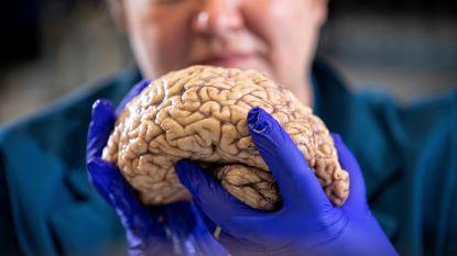 Leuvense neurobiologen ontdekken hoe brein leert uit negatieve ervaringen