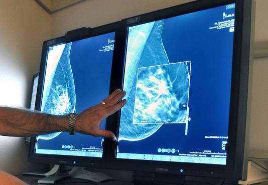 Een mammogram, foto ter illustratie
