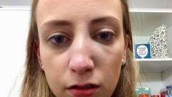"""Leuvense studente die klop kreeg op café van andere vrouw zoekt getuigen: """"Wie sloeg mij een gebroken neus?"""""""
