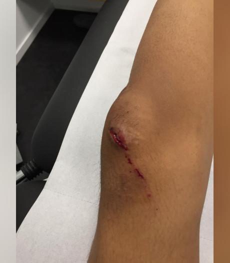 Aryan (13) van fiets getrapt door jongens op zwarte scooter