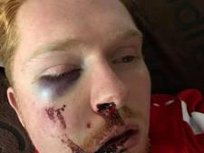 Avondje stappen in Eindhoven eindigt voor Jean Paul (25) in nachtmerrie: zeven breuken in gezicht