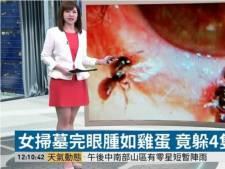 Dokter haalt vier levende bijen uit gezwollen oog van Taiwanese vrouw