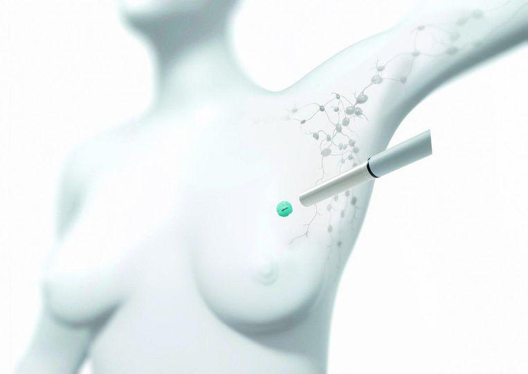 Tijdens de ingreep gebruikt de arts een magnetisch probe waarmee ze de tumor makkelijk kan terugvinden.