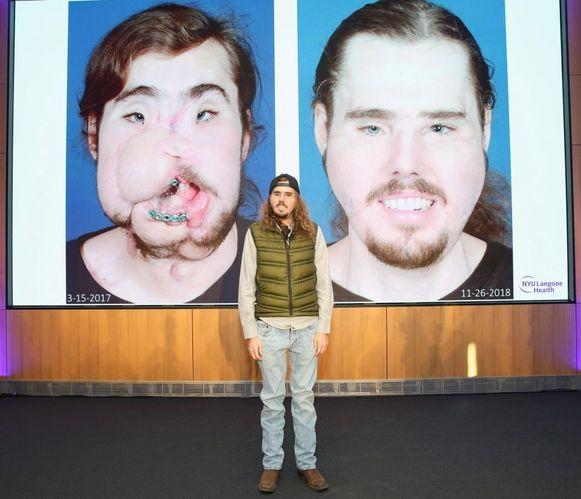 Cameron Underwood liet een meer dan geslaagde gezichtstransplantatie uitvoeren.