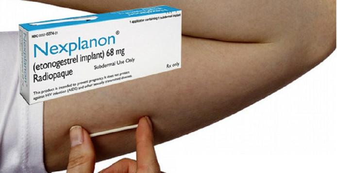 L'implant contraceptif.