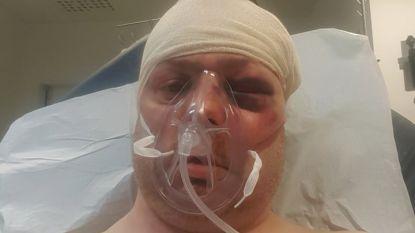 """Giovanni (41) slachtoffer van brutale carjacking op parking E40 in Groot-Bijgaarden: """"Ik durf niet meer achter het stuur kruipen de komende maanden"""""""