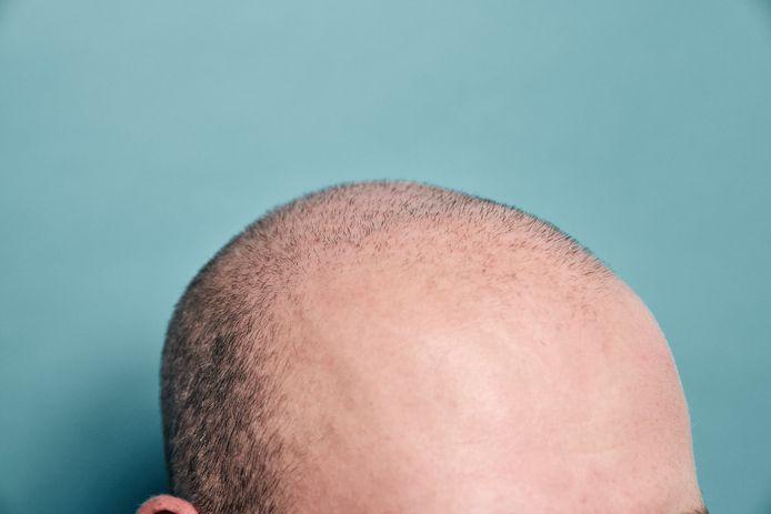 Werfleider Thomas Deygers zag op zijn zestiende al zijn haardos uitdunnen.