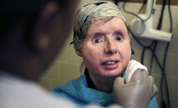 Charla Nash in februari vorig jaar. De nu 62-jarige vrouw kreeg vijf jaar geleden een gezichttransplantatie nadat ze werd aangevallen door een chimpansee.