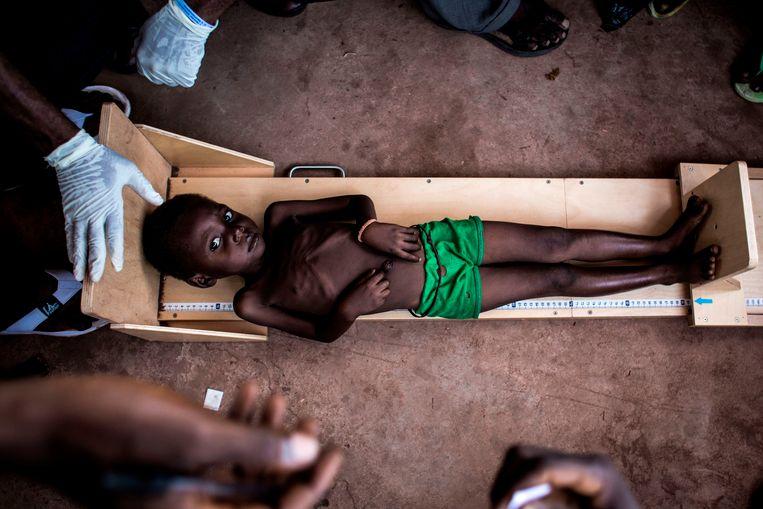 Een ondervoed kind wordt opgemeten in Tshikapa, Congo.  Beeld AFP