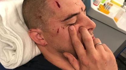 Jogger aangevallen door politiehond