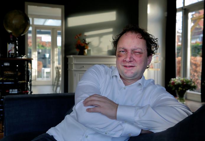 """Ruim twee weken na het ongeluk is Paul van Utrecht nog steeds gehavend. ,,Het ziet er al een stuk beter uit hoor."""" Hij is vaak moe, heeft geregeld hoofdpijn en weet niet of zijn zicht ooit nog verbetert."""