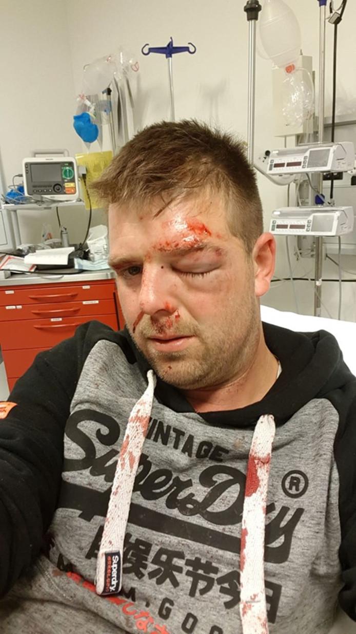 Martijn Bevelander werd zwaar toegetakeld door drie mannen.