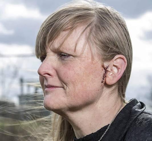 Krantenbezorgster Frederique Abbring en de wond bij haar oor na de aanval van de oehoe