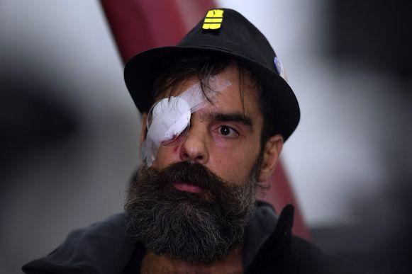 Jerome Rodrigues gaf vandaag een persconferentie in het ziekenhuis waar hij behandeld werd.