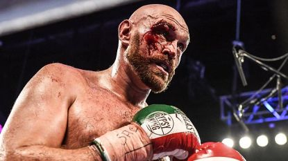 Bloederige bokskamp in Las Vegas, ook ref komt niet kreukvrij weg