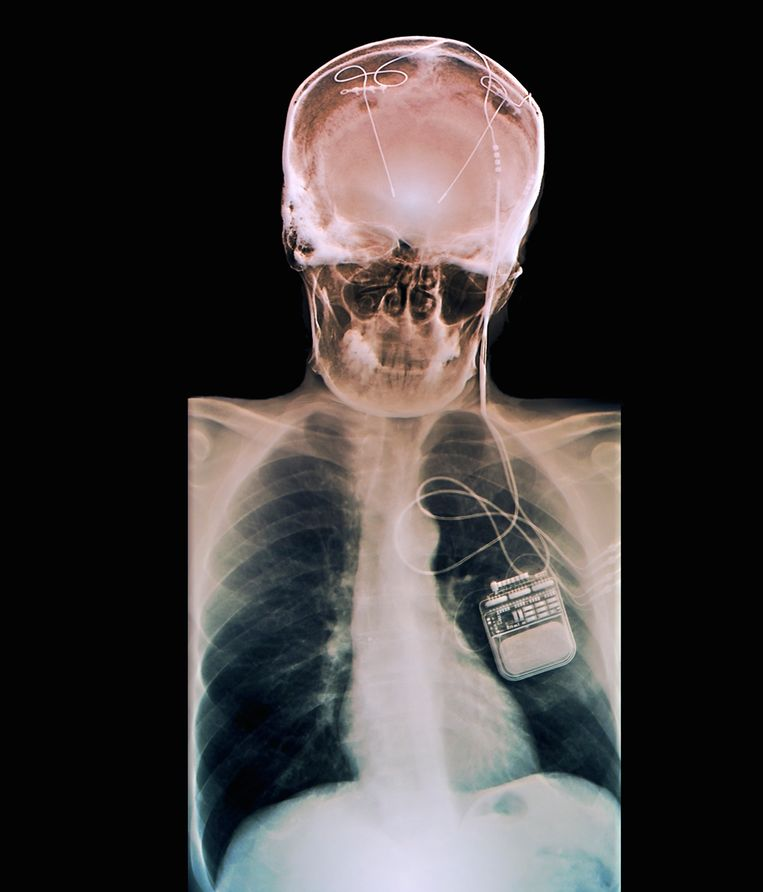 Breinstimulatie met elektroden tegen parkinson. Beeld Science Photo Library