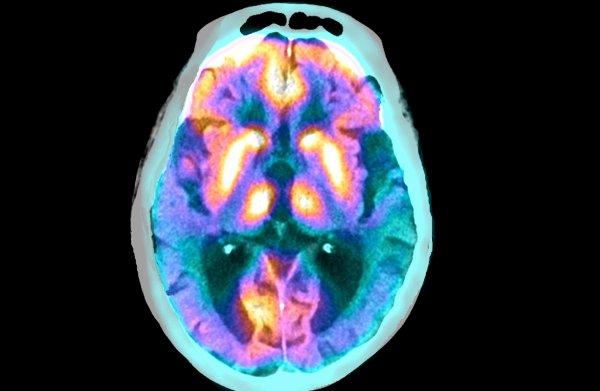 Mondbacterie nieuwe verdachte voor ontstaan alzheimer