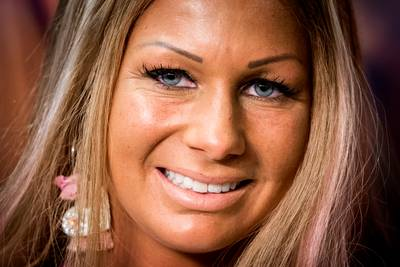 Samantha de Jong (Barbie) in ziekenhuis met gebroken bekken en pols
