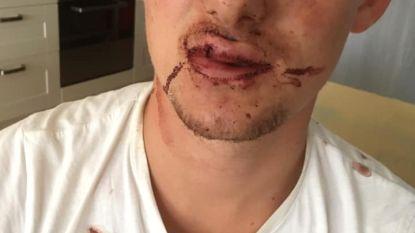 """Drie jongeren slachtoffer van zinloos geweld na fuif  op strand: """"Gebroken tand en gescheurde lip  na klappen van onbekenden"""""""