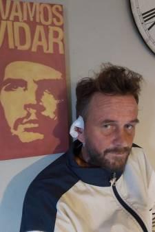 Oor van Thijs (39) afgebeten in Kaapverdië: 'Ik lijk nu precies op Vincent van Gogh'