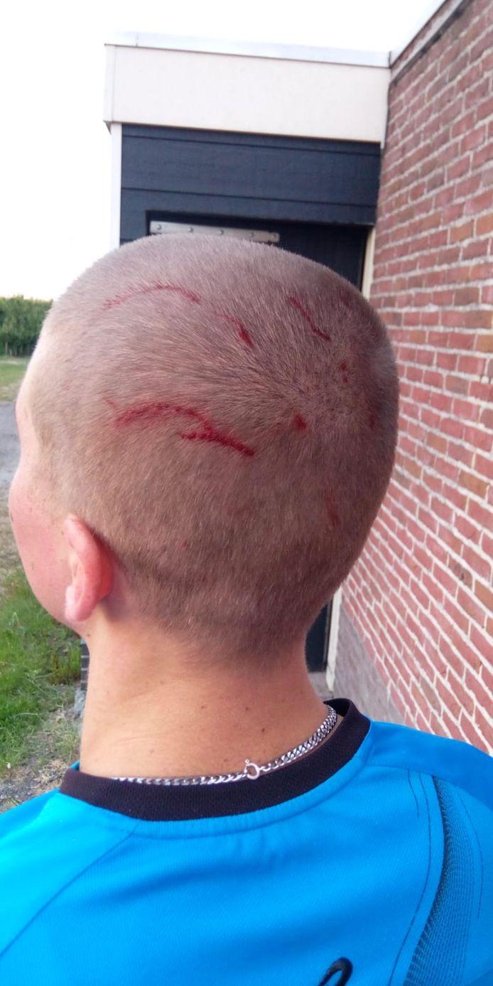 Mattheo van Koeveringe hield flinke schrammen over van de aanval door een buizerd.