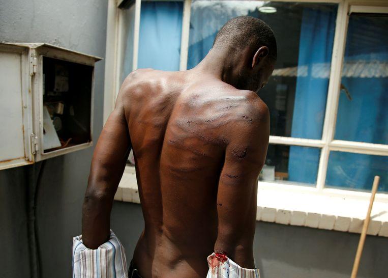 Een gemartelde man zoekt hulp in een ziekenhuis in Harare. Beeld REUTERS