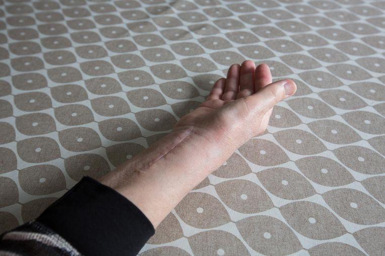 Het litteken op haar arm is duidelijk te zien.