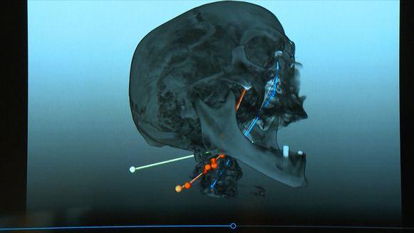 Virtuele autopsie