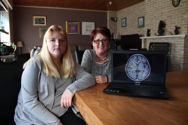 Mieke Wouters en haar moeder Hilde willen meer bekendheid voor het Moyamoya-syndroom. Daarbij treedt een vernauwing van de bloedvaten in de hersenen op.