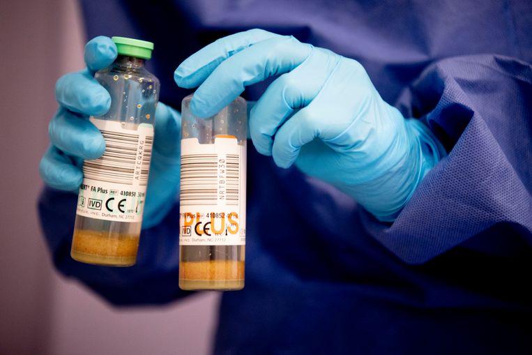 Verpleegkundige en artsen doen een speekseltest om een eventuele besmette patiënt te testen op COIVD-19. Beeld HH
