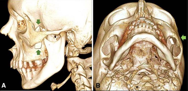 Op de röntgenfoto was duidelijk een scherp voorwerp te zien in de kaak van de 14-jarige jongen.